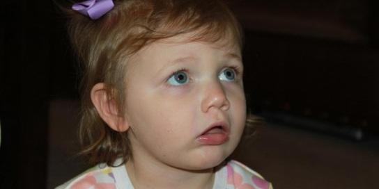 anak-sering-bengong-bisa-jadi-tanda-epilepsi-cufp989eu3